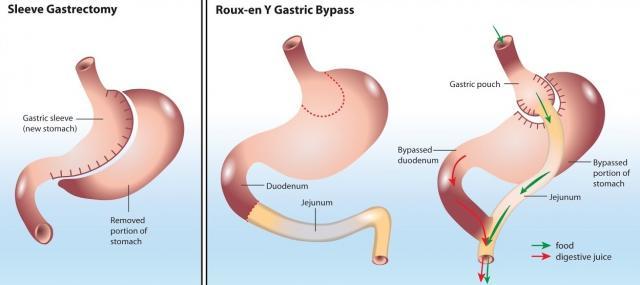 Zabieg zmniejszania żołądka